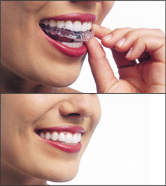 invisalign-mill-valley